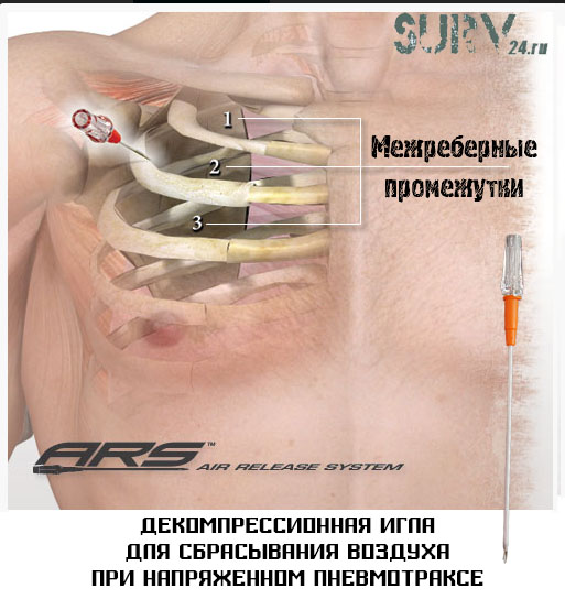 Декомпрессионная игла для пневмоторакса ARS Needle Decompression Kit